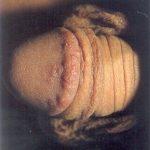 genital ülser
