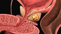 Prostatit – Prostat İltihabı
